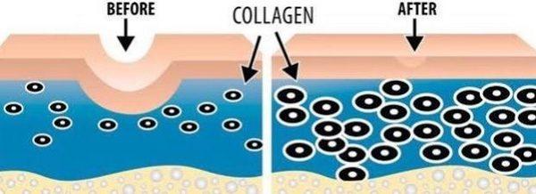 Воздействие лазером также способствует активной выработке коллагена