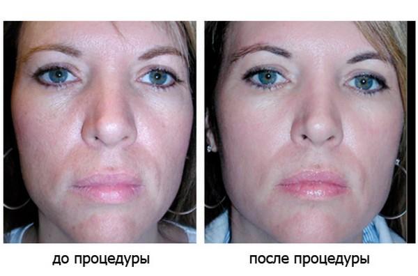 Состояние кожи лица становится значительно лучше
