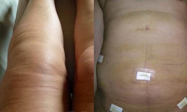 Мгновенный эффект сложно увидеть из-за отёков после операции
