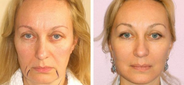 При уходе за кожей лица результат сохраняется на более долгий срок