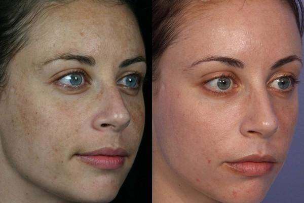 Можно добиться ровного цвета кожи лица