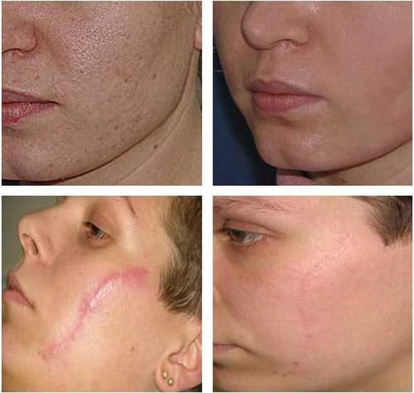Многие дефекты кожи исправляются фракционной мезотерапией
