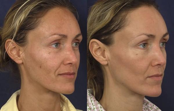 После воздействия таким лазером кожа начинает активно обновляться
