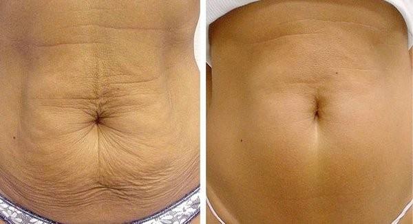 Благодаря процедуре можно заметно похудеть