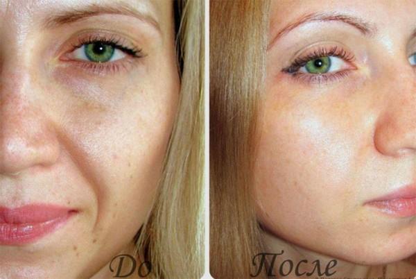 Фото до и после курса процедур микротоковой терапии №1