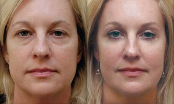Фото до и после коррекции скул процедурой липофилинга