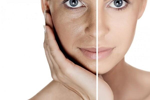 Проявления фотостарения отличаются от возрастных изменений