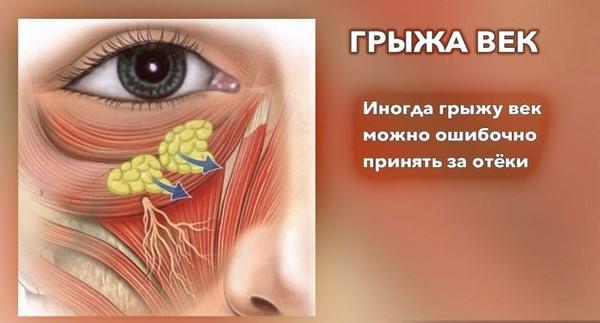 Часто грыжи под глазами путают с отеками