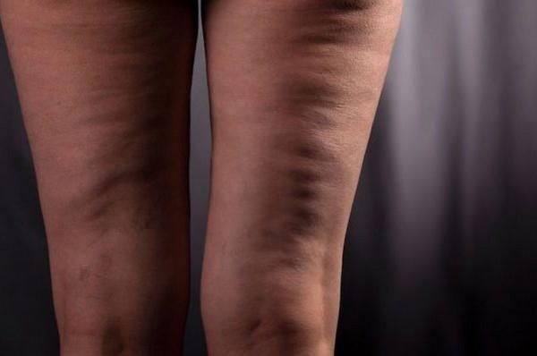 Целлюлит порой возникает и у тех людей, которые не страдают от лишнего веса