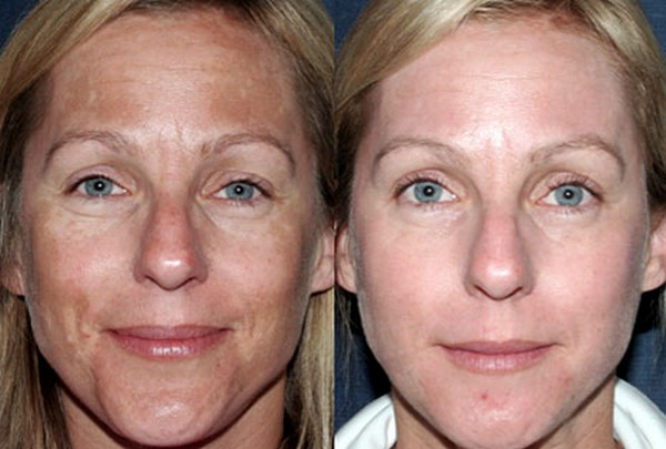 Процедура позволяет добиться омоложения кожи