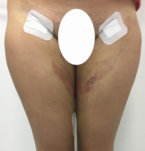 Конечно, побочных эффектов избежать удается не всегда, но результат процедуры радует клиенток