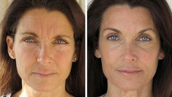 Благодаря процедуре можно избавиться от старого слоя кожи