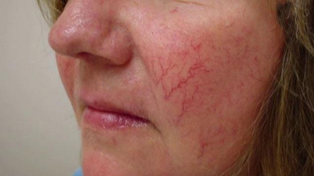 При значительном поражении сосудов потребуется несколько курсов лазеротерапии