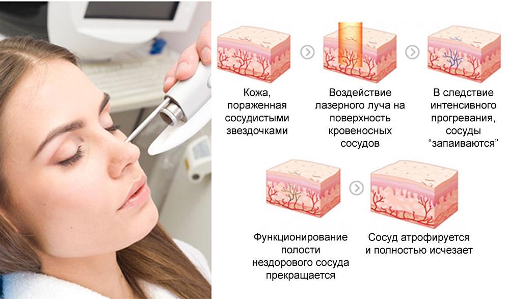 Воздействие лазера на сосуды