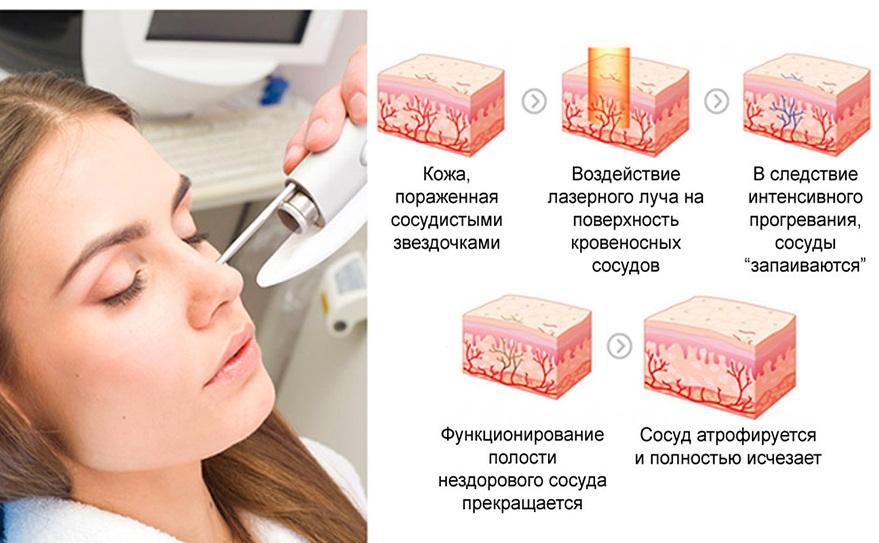Механизм воздействия лазера на кожу