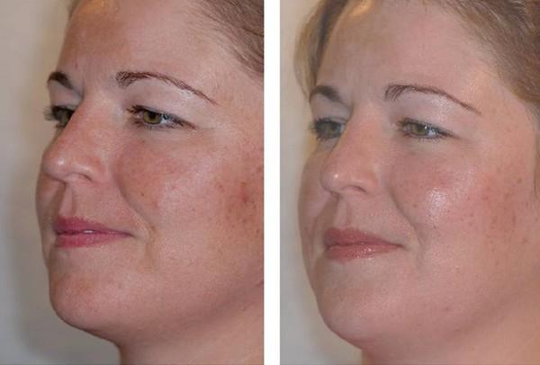 Криомассаж улучшает состояние кожи