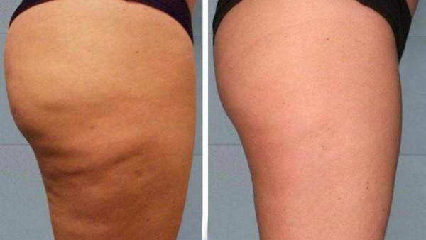 Фото до и после курса Эндосфера терапии №1