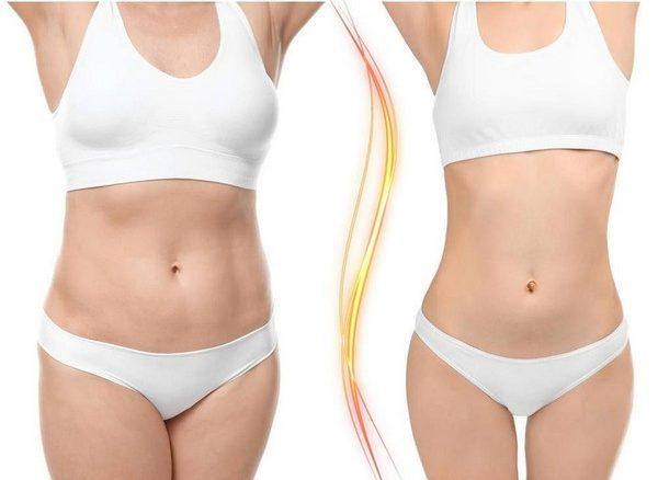 Отзывы об использовании пластырей для похудения противоречивые