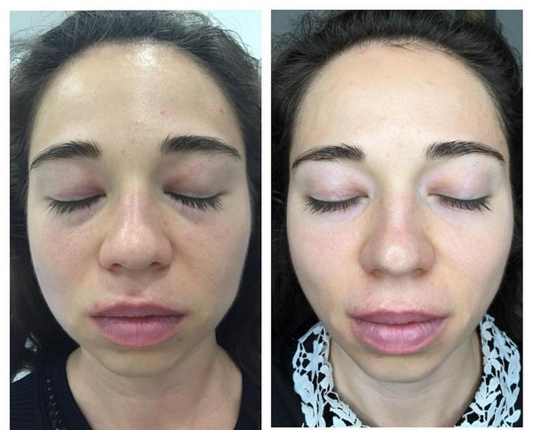 Фото до и после курса процедур дермотонии № 1