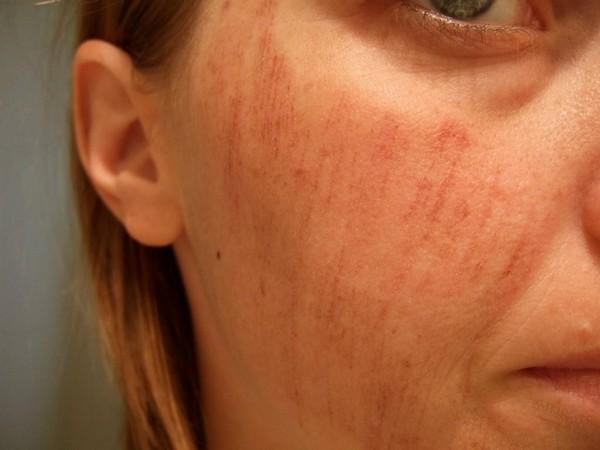 Травмированная кожа является противопоказанием к процедуре