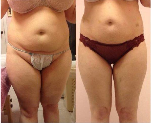 Фото до и после курса процедур электролиполиза № 1