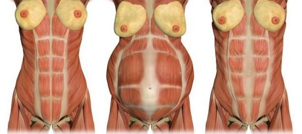 Часто диастаз возникает при беременности