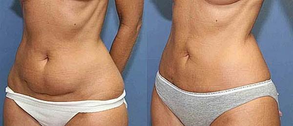 Фото до и после курса процедур с использованием липолазера № 1