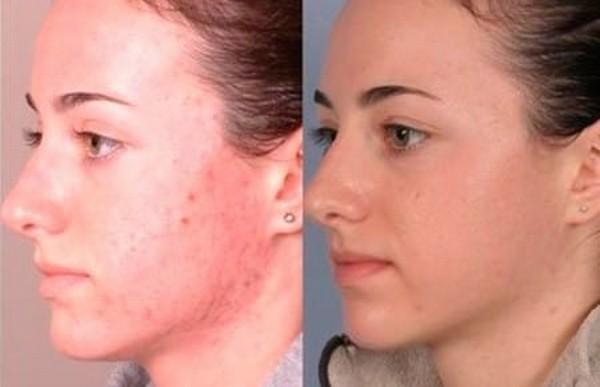 Фото до и после курса процедур криомассажа №1