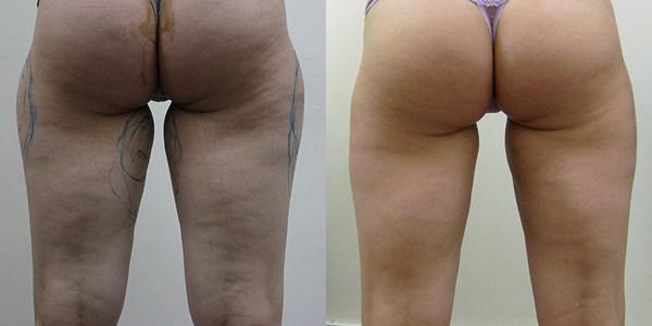 Фото до и после курса процедур с использованием липолазера № 3