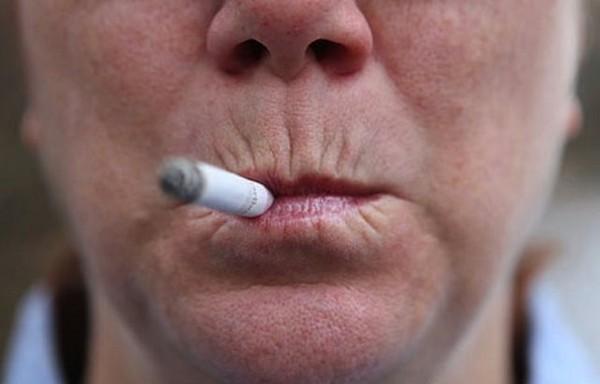 Часто кисетные морщины возникают из-за курения