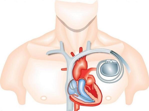 Если у человека установлен кардиостимулятор, ему такую процедуру не проводят