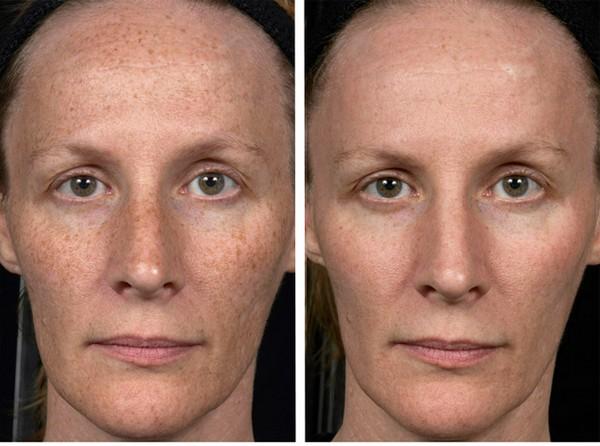 Лазер помогает коже приобрести здоровый вид