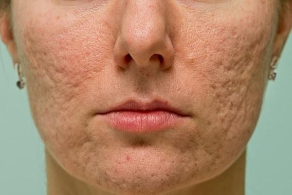 Процедура показана при наличии рубцов на коже лица