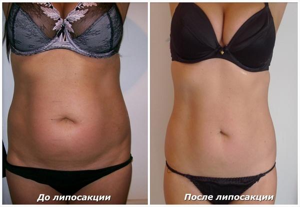 Фото до и после курса процедур с использованием липолазера № 2