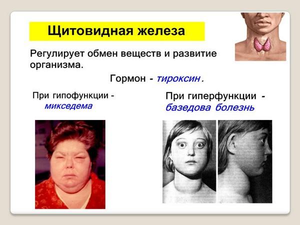 Болезни щитовидной железы – одно из противопоказаний к процедуре