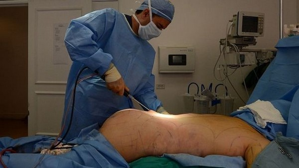 Хирургическим вмешательством можно улучшить внешний вид ягодиц
