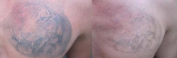 Palomar Q-switch KTP удаляет татуировки