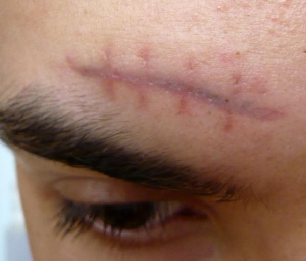 При наличии свежих шрамов в области воздействия процедура противопоказана