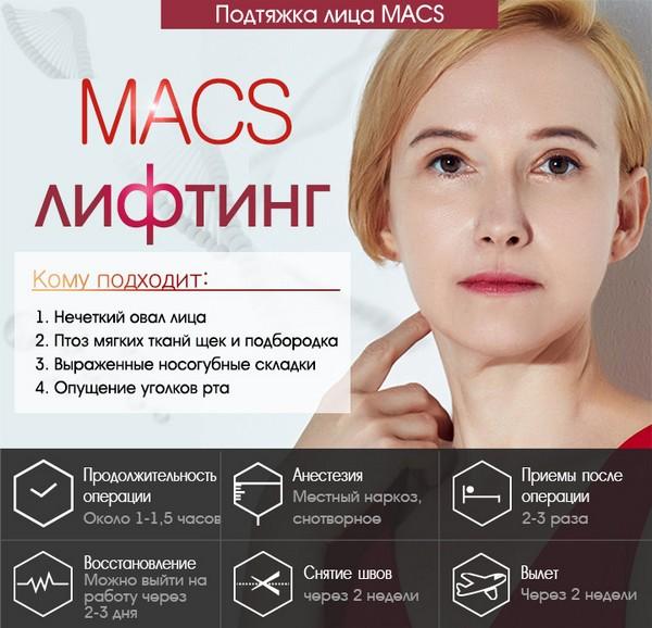 О MACS-лифтинге