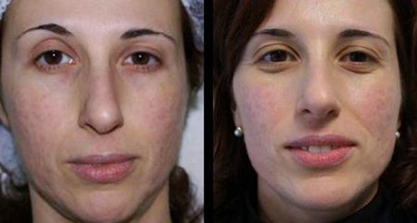Регенерация кожи происходит довольно быстро, благодаря чему эффект можно увидеть в скором времени