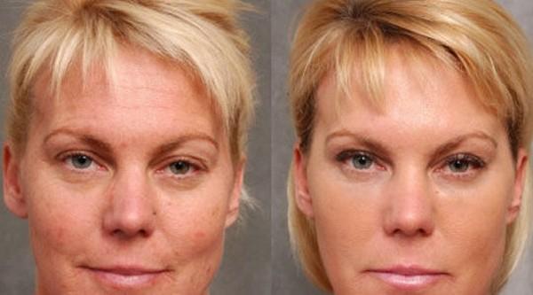 Морщины у глаз убираются лазером за несколько процедур
