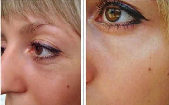 Многие испытуемые говорят об улучшении состояния кожи