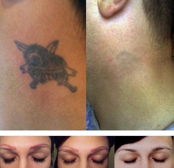 С помощью неодимового лазера можно даже удалить татуировку