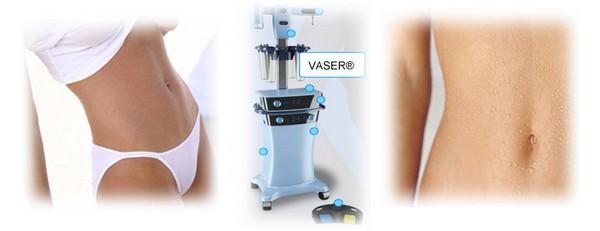 Можно достичь эффекта «2 в 1» благодаря липосакции аппаратом Vaser