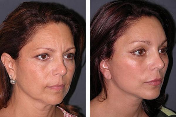 До и после процедуры Short-Scar Lift