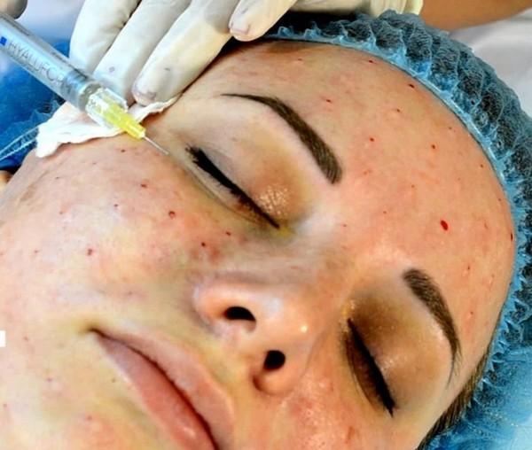 Уколы травмируют кожу и создают поводы для тяжелых последствий