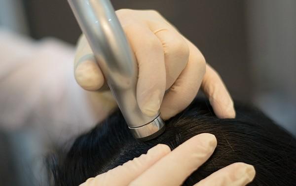 После электропорации лучше растут волосы