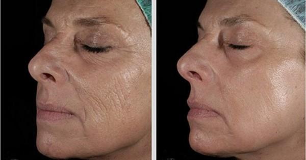 Чтобы убрать морщины вокруг рта, нужно 4-5 сеансов