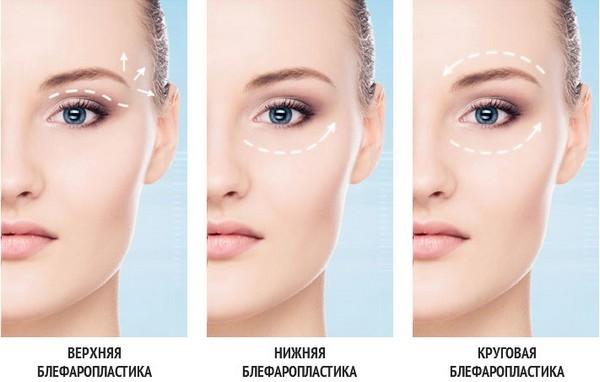 Традиционная блефаропластика предполагает разрез кожи
