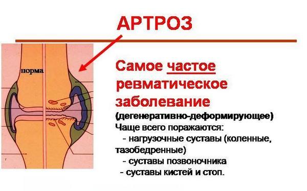 Дермотонию используют в борьбе с артрозом и прочими ревматическими заболеваниями
